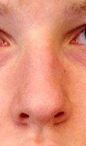 Nase von vorn 2
